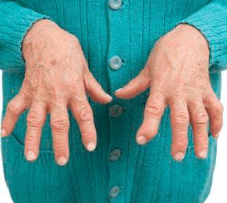 Болезни суставов приводят к параличу и инвалидности!
